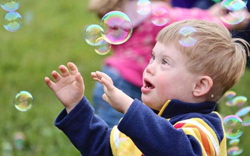 Bệnh down ảnh hưởng tới sự phát triển của trẻ