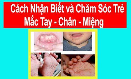 Một số thông tin cha mẹ cần phải biết về bệnh tay chân miệng ở trẻ