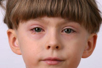 Cách xử lý và phòng ngừa bệnh đau mắt đỏ ở trẻ em