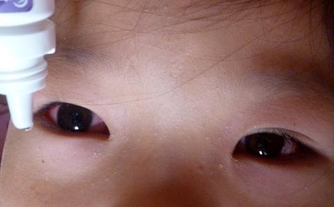 Cách phòng ngừa và xử lý bệnh đau mắt đỏ ở trẻ em