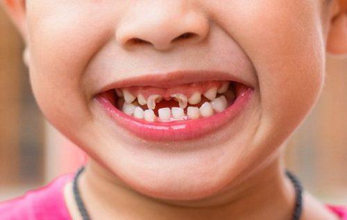 Mẹ nên chú ý các thực phẩm để phòng ngừa bệnh sâu răng cho con