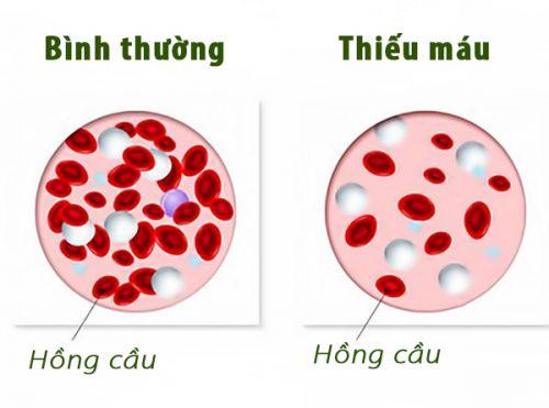 Bệnh thiếu máu ở trẻ em là gì?