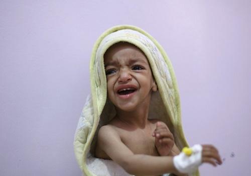 Mách nhỏ các bà mẹ các nhận biết và phòng ngừa nguy cơ suy dinh dưỡng ở trẻ
