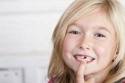 """""""Sún răng ở trẻ"""" cần làm gì để phòng tránh?"""