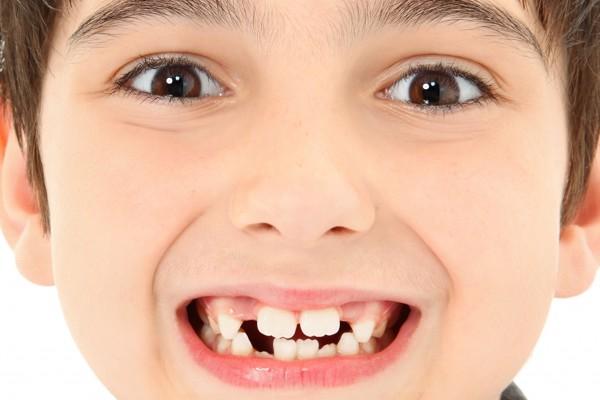 Tình trạng răng của trẻ mọc lệch